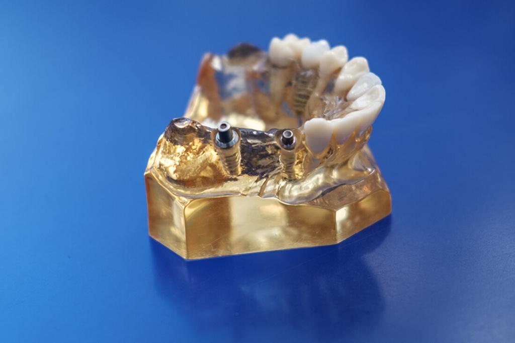 Mund-, Kiefer- und Gesichtschirurgie Hannover - Bothe - Zahnimplantate